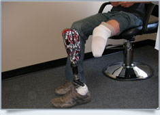 Peak Prosthetic Gallery Image: